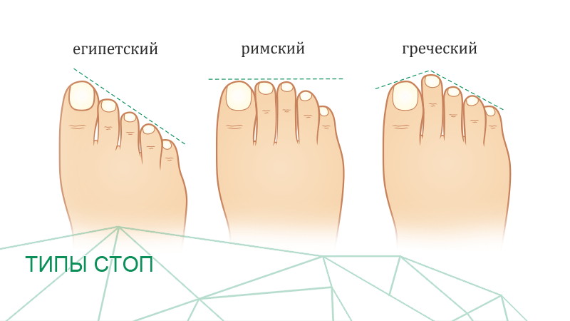 foot type